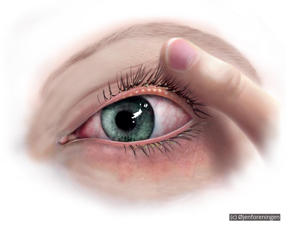 udslæt på øjenlåg