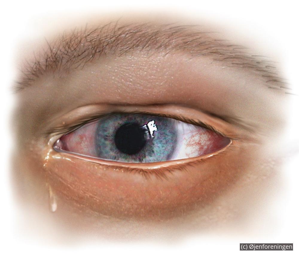 smerter i øjet ved bevægelse
