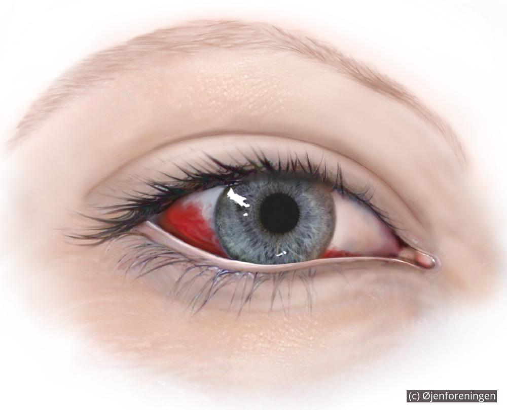 svamp i øjet