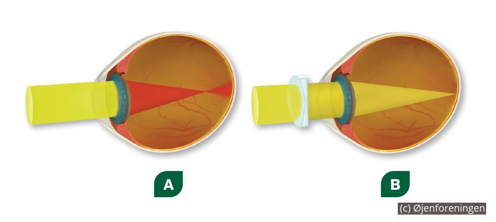 Operation eller briller kontaktlinser  f7df37cb6dd25