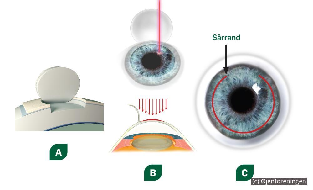 ea27ff0f5231 Operation eller briller kontaktlinser
