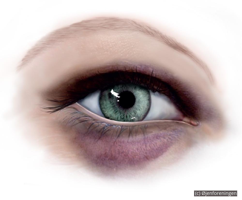 kontaktlinse sidder fast under øjenlåg