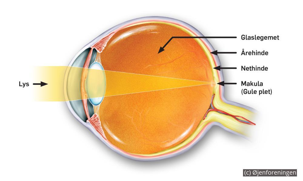 den gule plet øjet