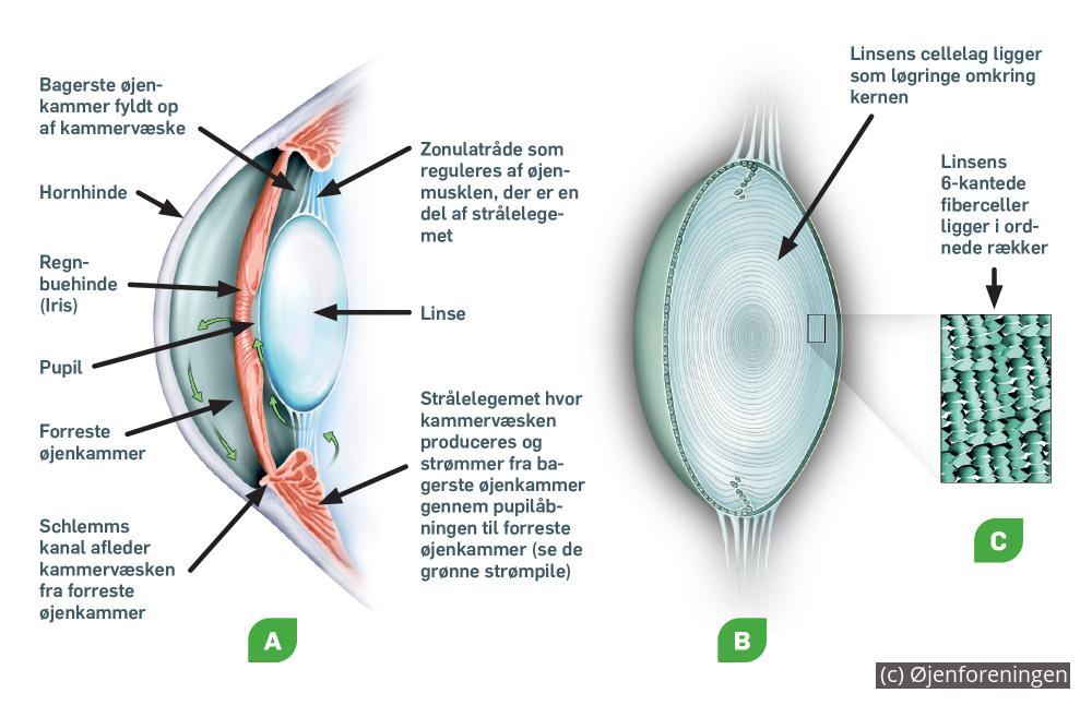 Hvad er årsagen til grå stær? (katarakt)   Øjenforeningen