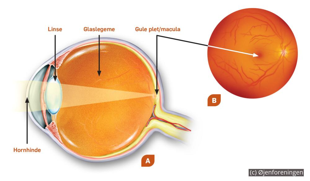 macula 5 mm livskvalitet Øjenforeningen