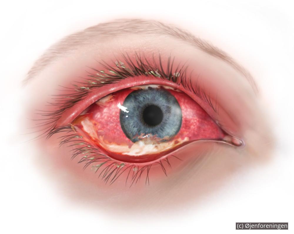 kræft i øjet symptomer
