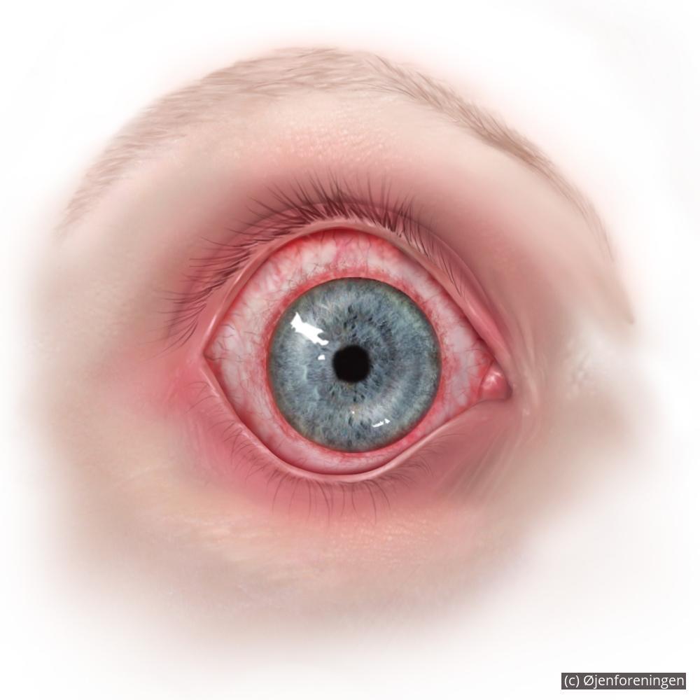 rødme i øjet