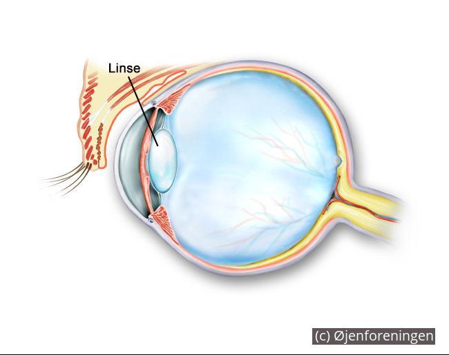 3a2a68dcedf7 Tværsnit øjet - linsen markeret