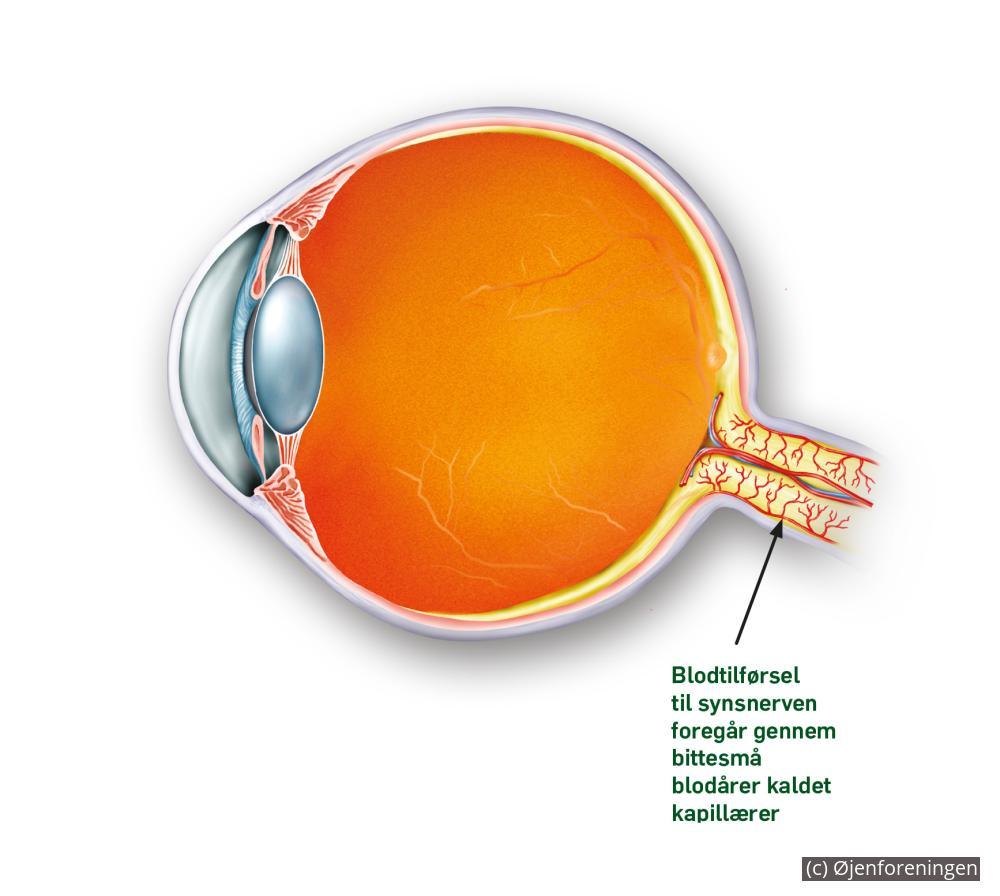 blodprop i øjet symptomer