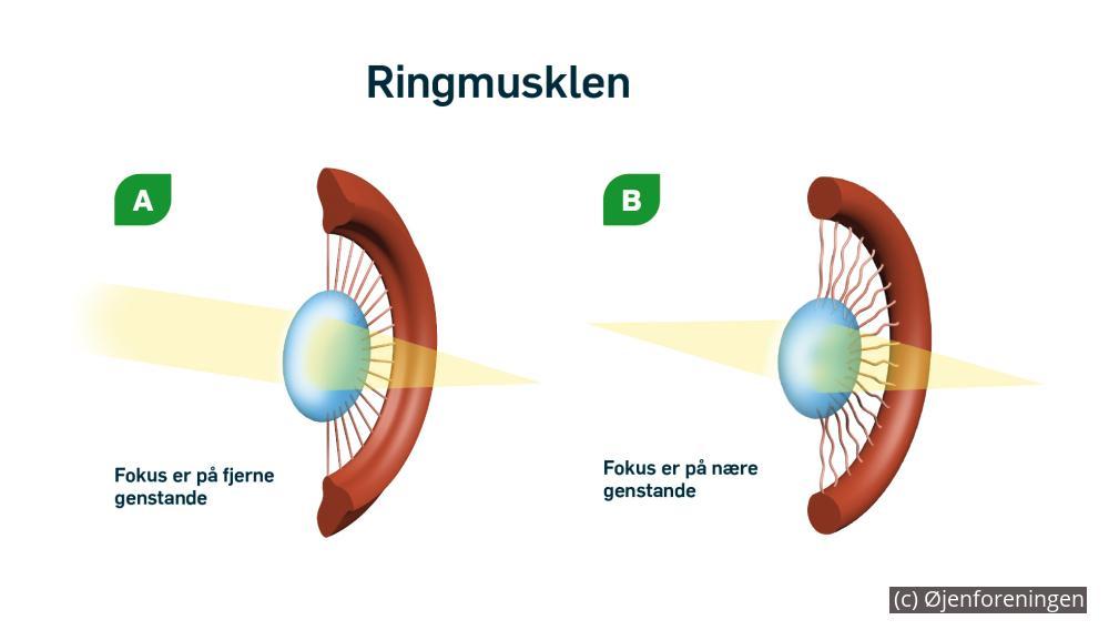 4080f5f7a283 3A Ringmusklen i strålelegemet ses her i sin hviletilstand. Som en udspændt  elastik hiver zonulatrådene i øjets linse