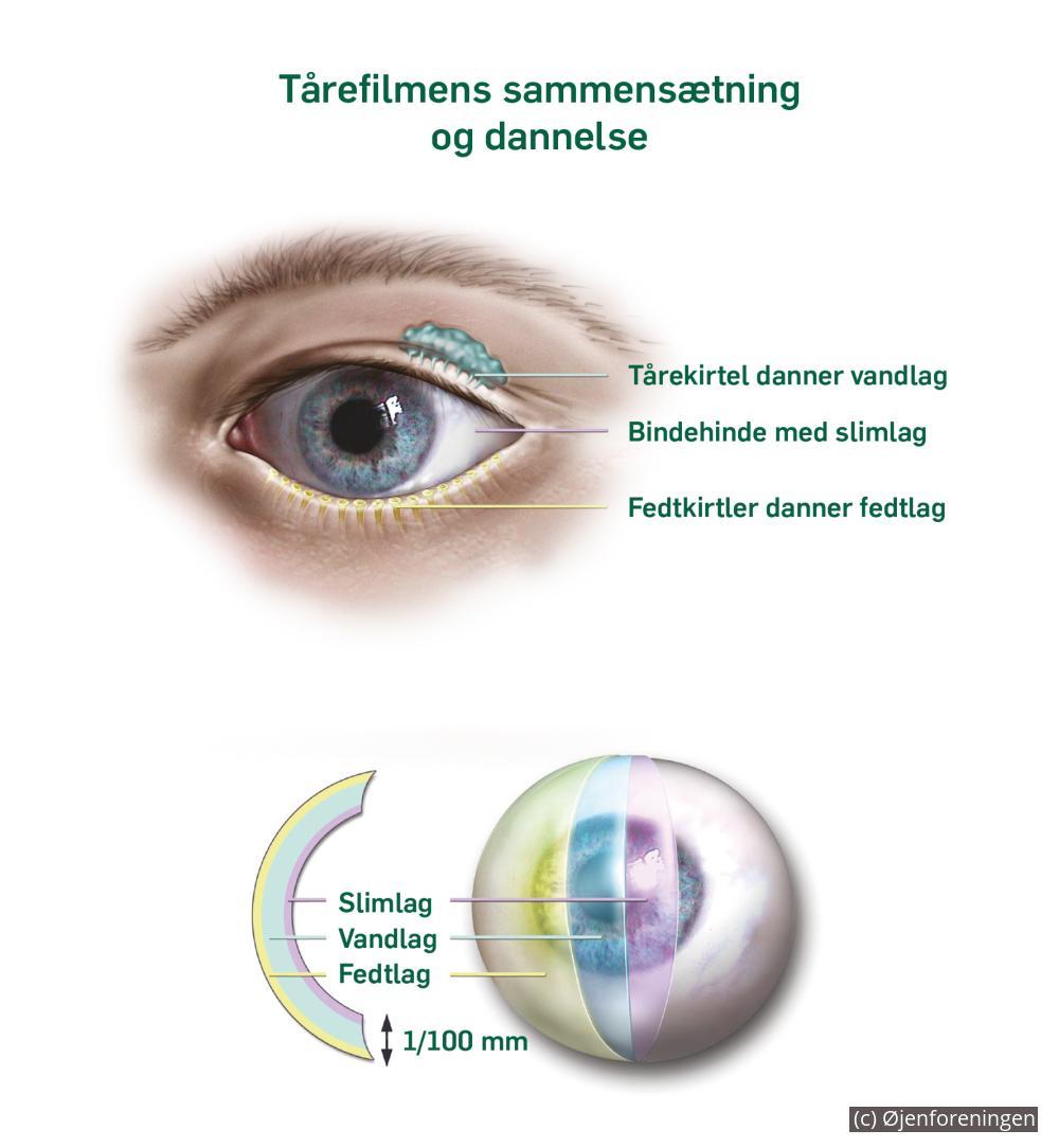 blanke øjne symptomer