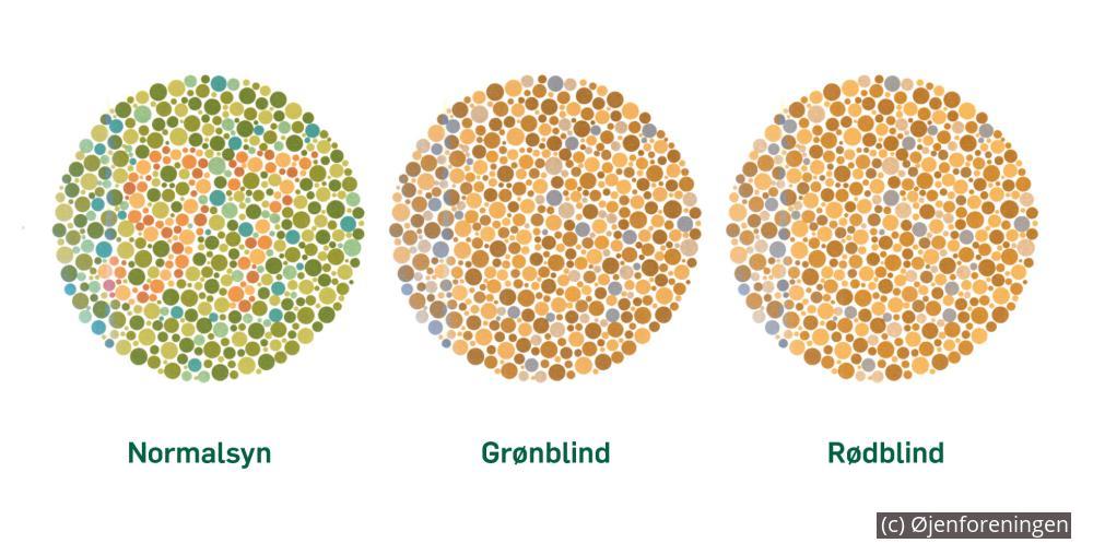 kan kvinder være farveblinde