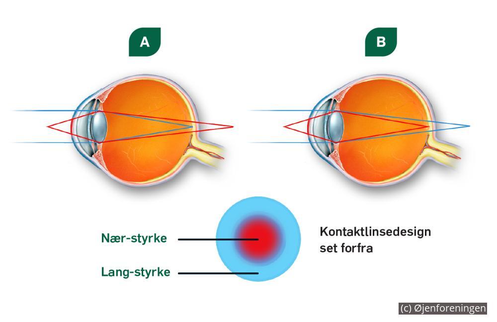 Kontaktlinser   Øjenforeningen